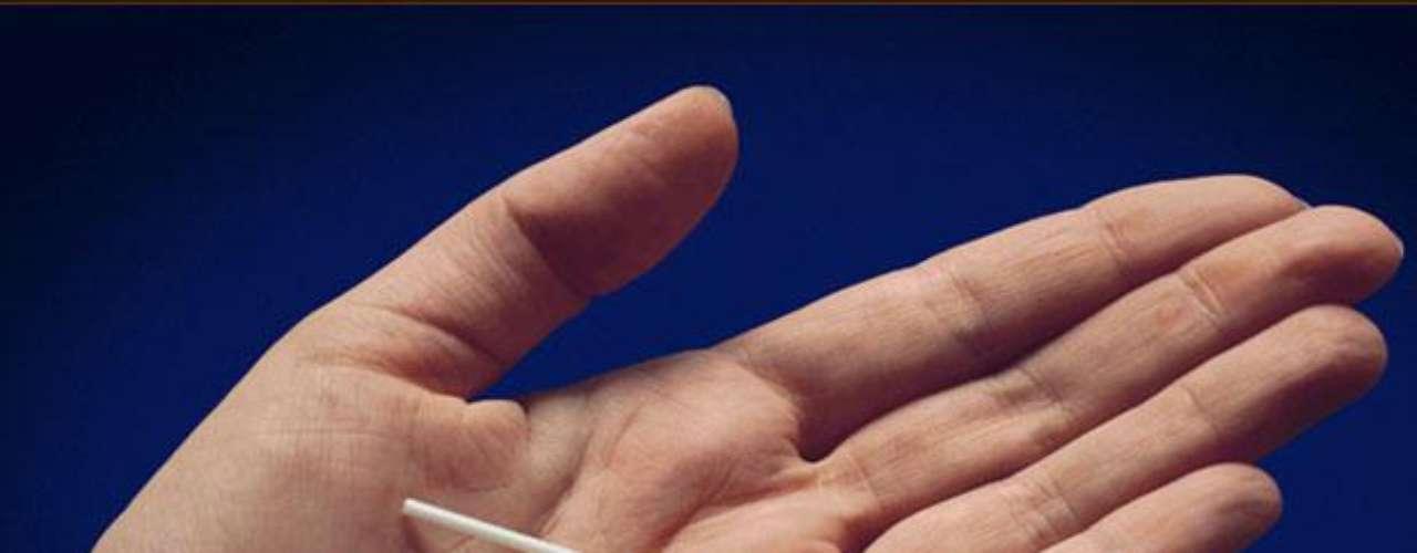 Implante subdérmico: se trata de una pequeña varilla de 4 cm de largo que contiene una hormona llamada gestágeno. La ventaja de este método es que dura un periodo entre tres y cinco años y tiene muy alta eficacia. Foto