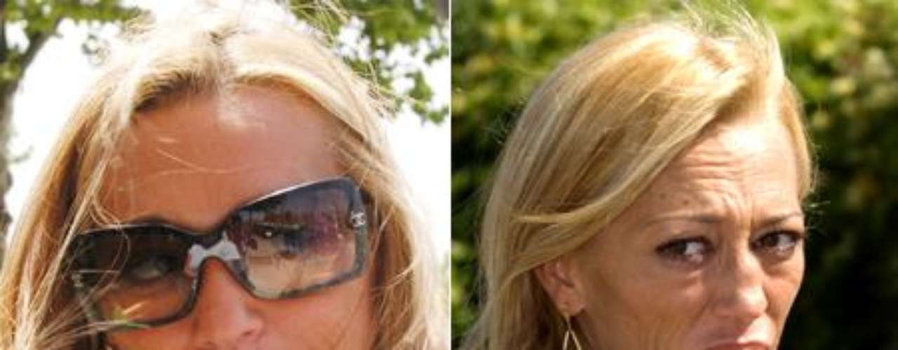 En 2006 (imagen izquierda), su nariz aún no había experimentado la deformación que la ha animado a pasar por quirófano hace quince días.