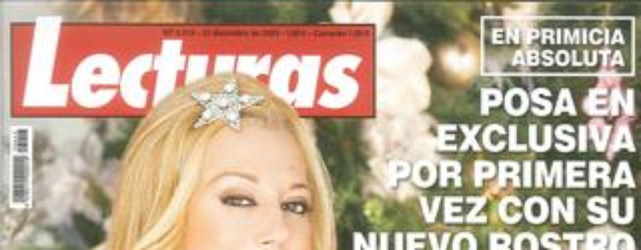 Belén ha decidido vender la exclusiva de su nueva nariz a Lecturas, su revista de cabecera. La entrevista se la ha realizado J.J. Vázquez.