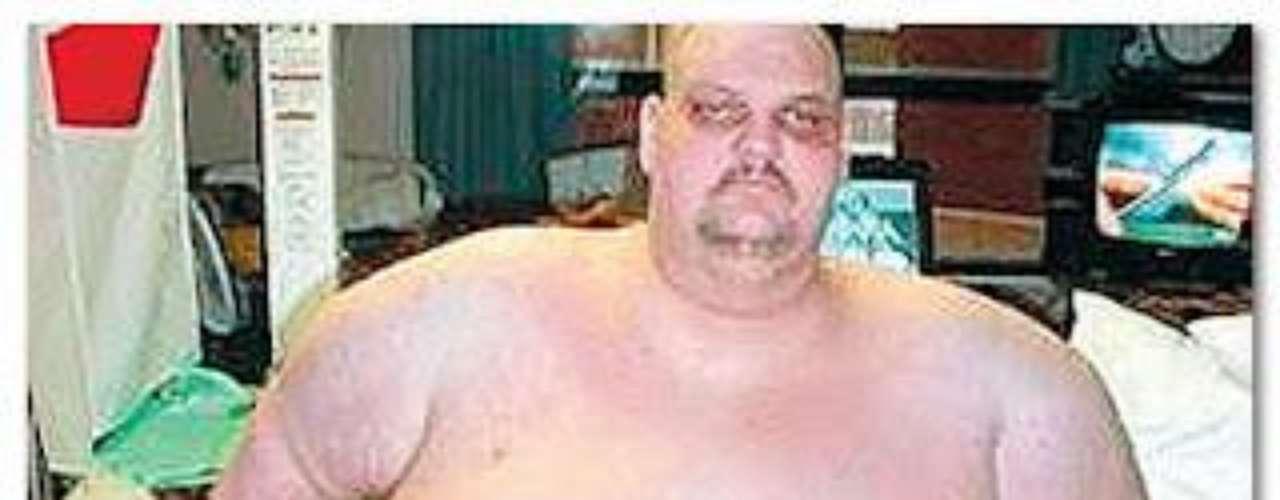 Tras un programa de dieta estricta,  Deuel  llegó a pesar 370 libras.