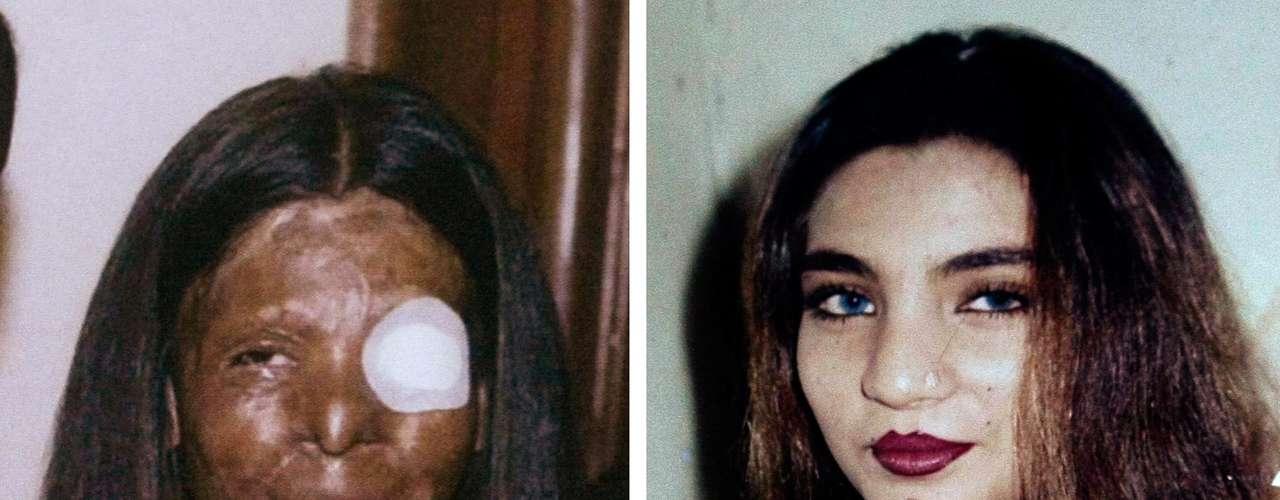 Dos fotografías de Fakhra Younus antes y después de que le arrojara ácido en el rostro su esposo, un ex legislador e hijo de un poderoso polìtico hace doce años. Younus fue sometida a más de tres docenas de cirugías para repararle el rostro y el cuerpo. finalmente la mujer de 33 años decidió sucidarse, lanzándose de un sexto piso en Roma donde recibía tratamiento.
