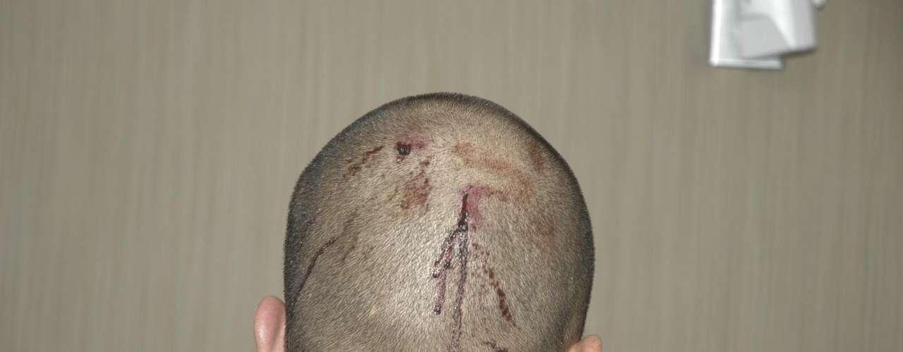 'Sangrado, sensibilidad en la nariz y una laceración pequeña en la parte posterior de su cabeza. Todas las lesiones tienen sangrado leve', escribió el paramédico Michael Brandy acerca de las lesiones de Zimmerman en el informe.