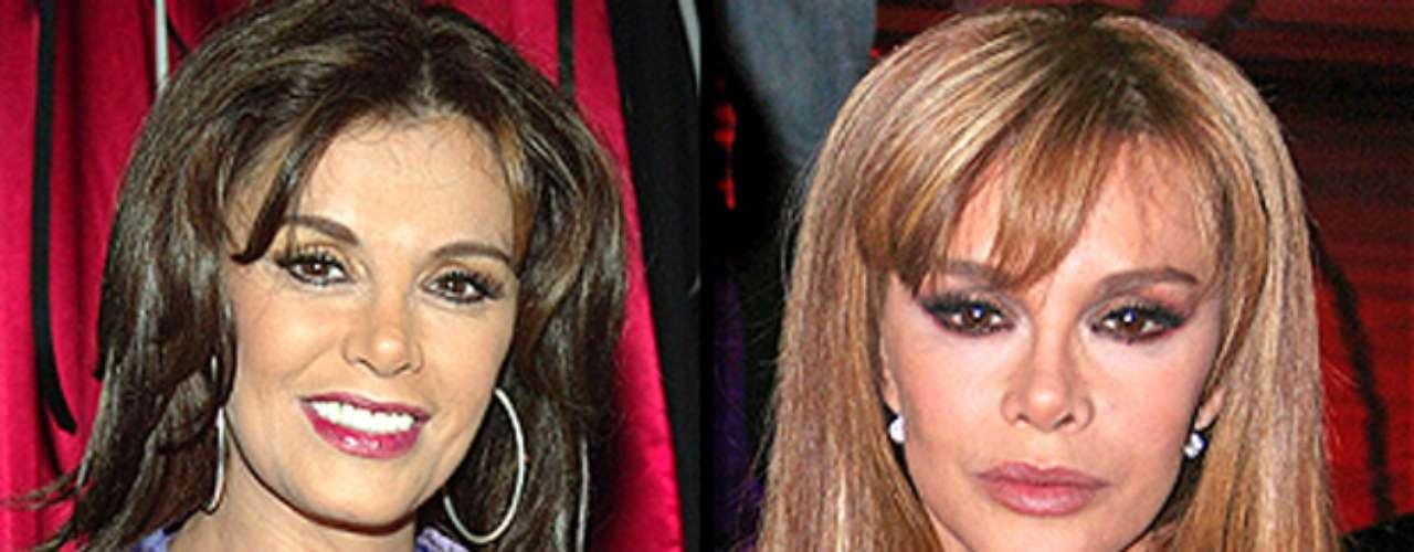 Lucia Méndez confesó que se hizo un levantamiento en la cara, una cirugía en la nariz y una lipoescultura.