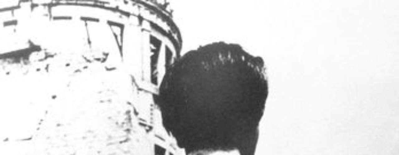 Un sobreviviente muestra las cicatrices dejadas por la explosión, en agosto de 1951.