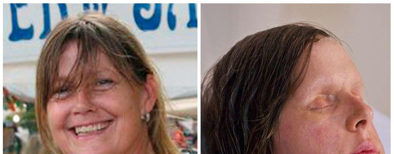 La mujer perdió las manos debido a complicaciones, pero el trasplante de rostro prosperó.