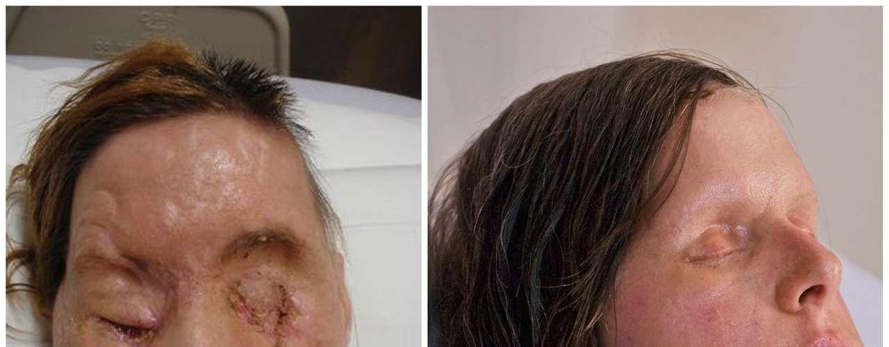 Conforme pasó el tiempo y bajó la hinchazón, la nueva cara de Charla comenzó a moldear a su estructura ósea subyacente, dándole una apariencia similar a la que tenía antes del ataque en 2009. Aunque la parte derecha de su boca se inclina un poco debido a daños en los nervios, a simple vista es imposible imaginar lo sucedido.
