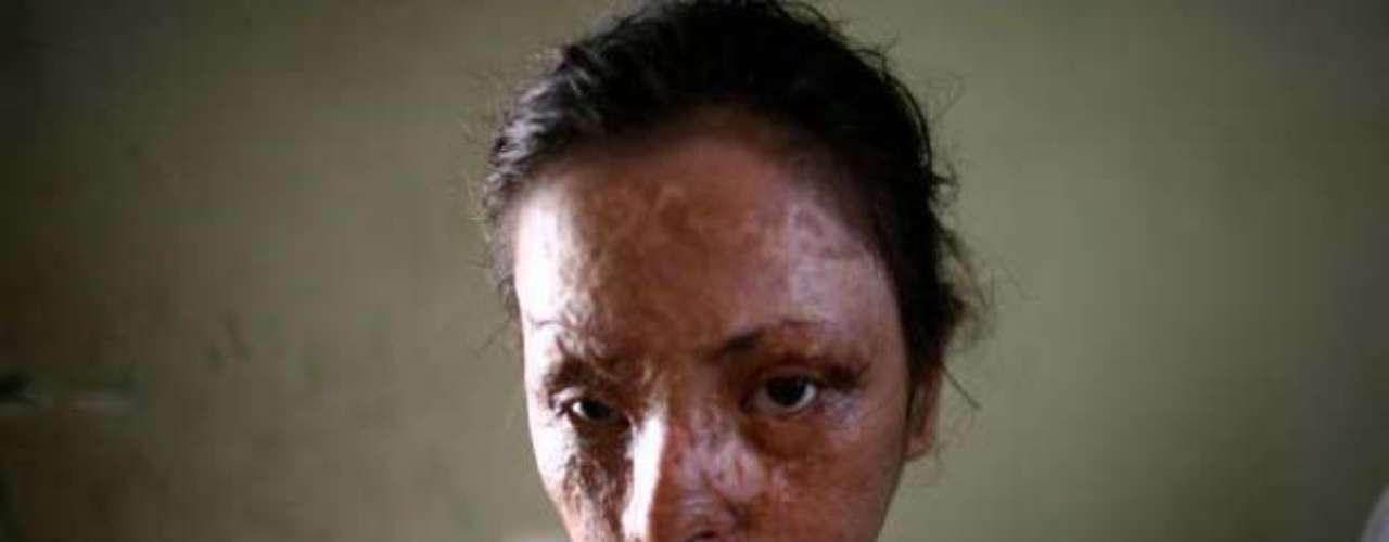 El rostro de Nashwa Ahmed Khalil, esta niña de 12 años, quedó desfigurado cuando alguien le arrojó ácido en la cara durante una disputa con otra familia, narra Tomasevic. El Cairo, barrio antiguo de la capital de Egipto 12 de septiembre 12 de 2007.