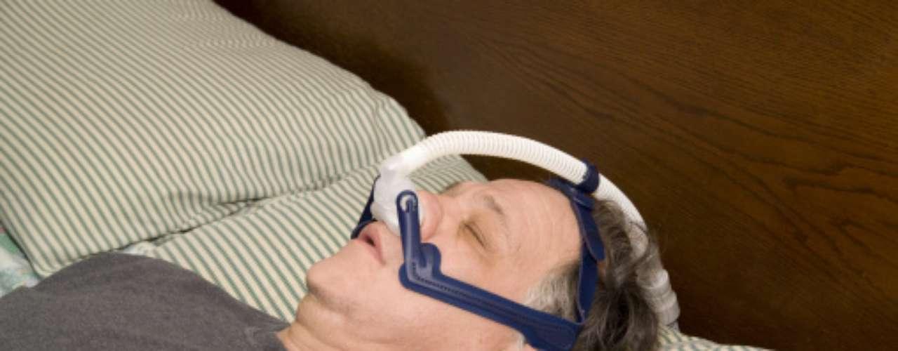 Cuando la apnea es severa, no se indican dispositivos intraorales. Para estos pacientes se utilizan mascarillas especiales. El objetivo es mantener la presión positiva y un flujo continuo de aire en las vías respiratorias, lo que evita la obstrucción.