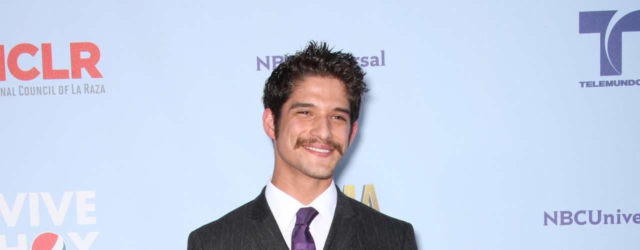Tyler Posey is taking the werewolf thing too seriously and growing hair everywhere. That 'stache is ugly looking on him and did he borrow that suit from his dad? Fashion MISS!