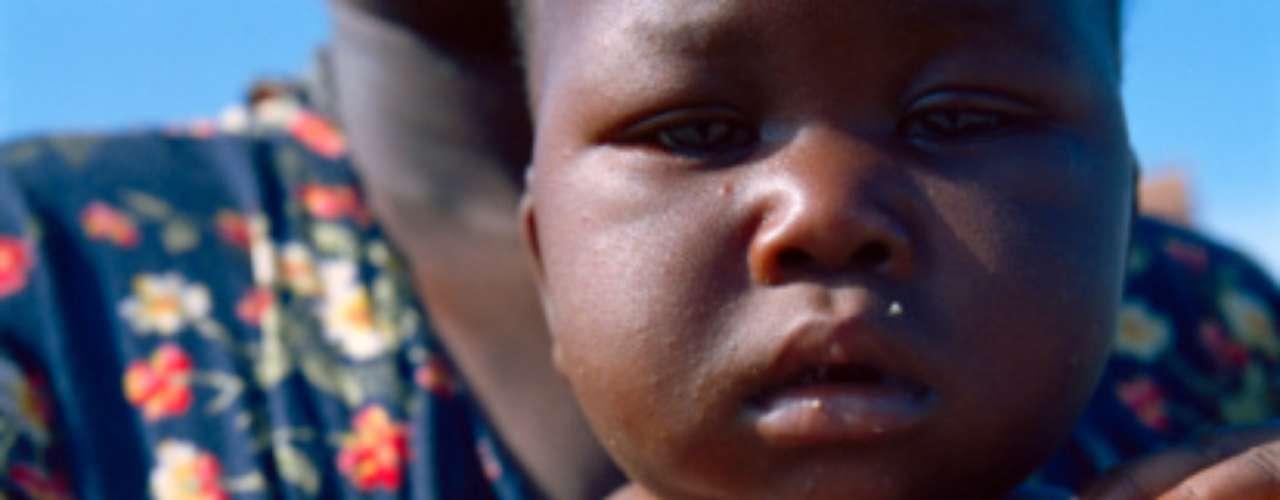 SUAZILANDIA: Los problemas de salud son probablemente uno de los factores principales que impiden a la población de este pequeño país del sur de Africa escapar de la pobreza. Tiene una de las más altas tasas de infectados de VIH a nivel mundial.