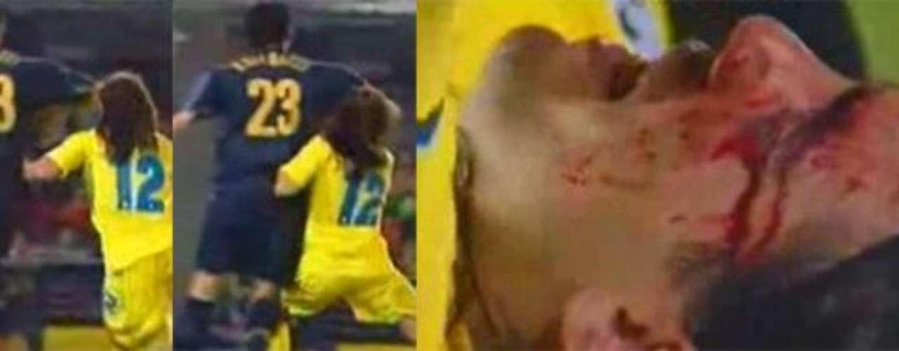 Una de las peores imágenes de Materazzi, a quien apodaban \