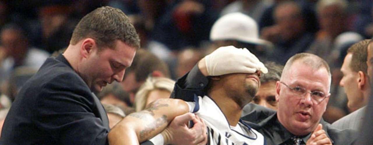 En el basquetbol se pueden presentar algunas terribles lesiones, pero el ojo lastimado de Allan Ray podría ser más que horrible.