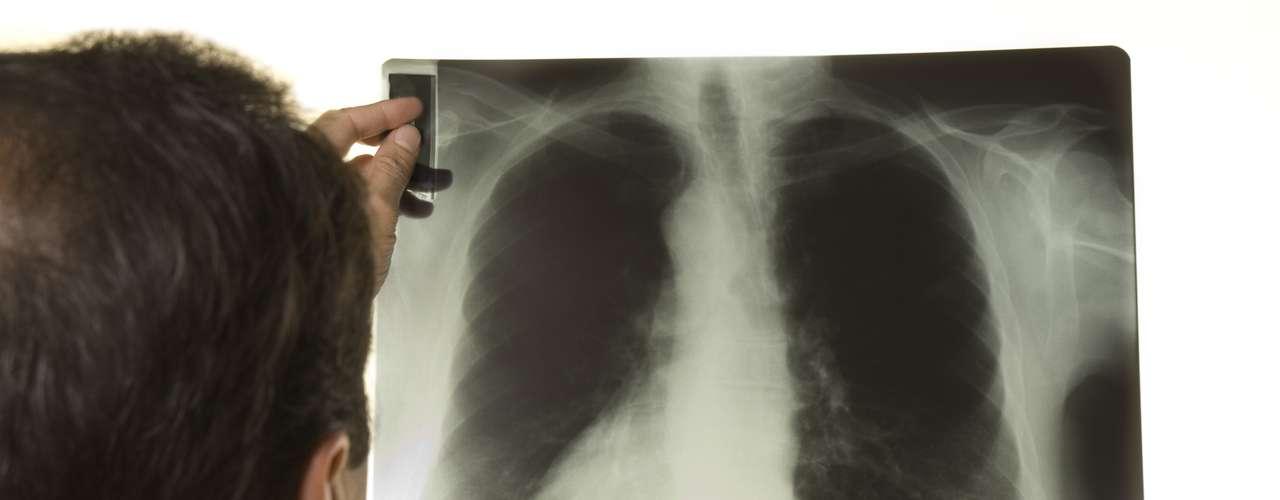 La tuberculosis afecta principalmente a los adultos jóvenes, es decir, en la edad más productiva. Pero todos los grupos de edad están en riesgo. Más del 95 por ciento de los casos y las muertes se registran en los países en desarrollo. Dato: La tuberculosis es la causa principal de muerte de las personas infectadas por el VIH, pues causa una cuarta parte de las defunciones en este grupo.