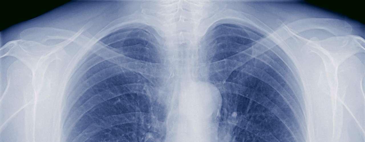 Tuberculosis multirresistente:Es aquella causada por una cepa que no responde al tratamiento por lo menos con isoniazida y rifampicina, los dos medicamentos antituberculosos de primera línea (estándar) más eficaces. Dato: La tuberculosis multirresistente se ha encontrado en casi todos los países estudiados.