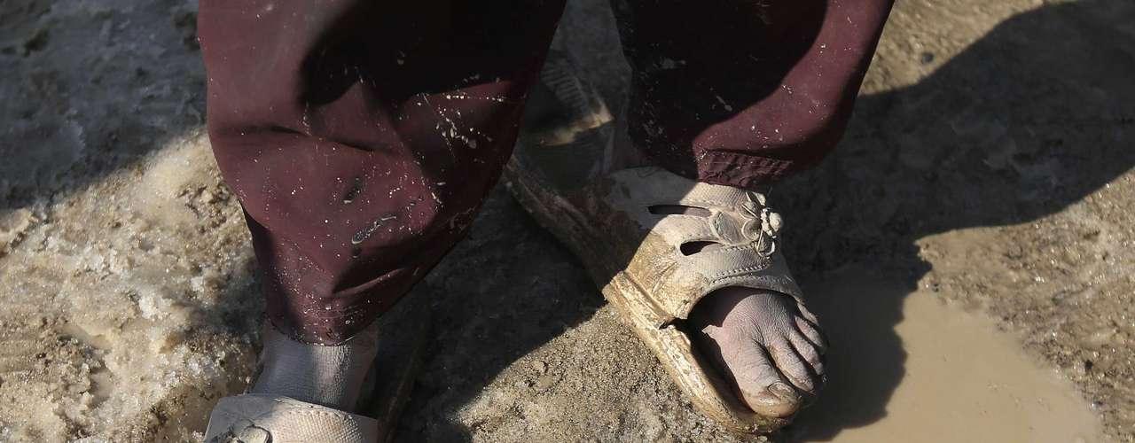 Una niña afgana con sandalias muestra sus pies después de haber caminado sobre la nieve. El pasado año 30 personas, la mayoría de ellas niños, fallecieron como consecuencia del frío.