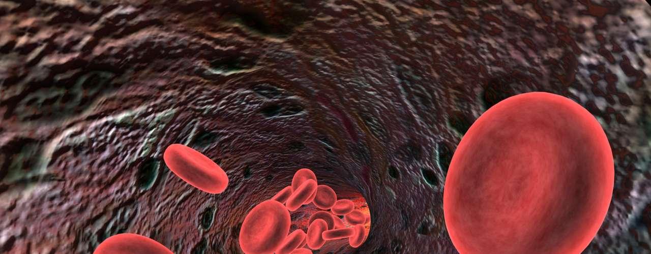 La anemia es una afección en la cual el cuerpo no tiene suficientes glóbulos rojos sanos. El hierro es un pilar fundamental e importante para los glóbulos rojos. Cuando el cuerpo no tiene suficiente hierro, produce menos glóbulos rojos o glóbulos rojos demasiado pequeños. Esto se denomina anemia ferropénica. (Definición de Medline Plus)