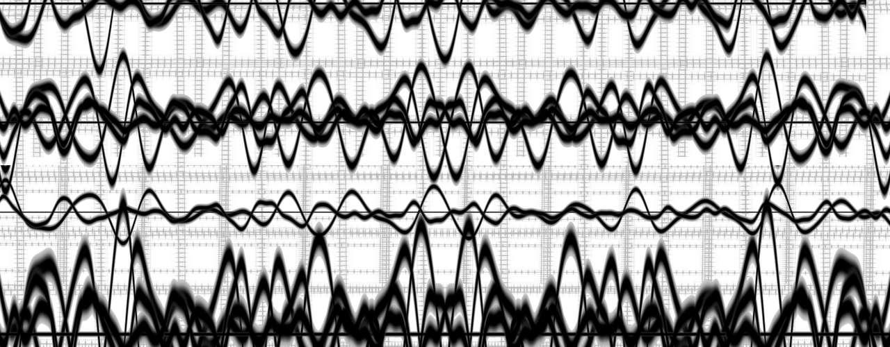 Tipos: El tipo más frecuente (6 de cada 10 casos) es la epilepsia idiopática, es decir, la que no tiene una causa identificable. En muchos casos hay alteraciones genéticas subyacentes. La epilepsia con causas conocidas se denomina epilepsia secundaria o sintomática.