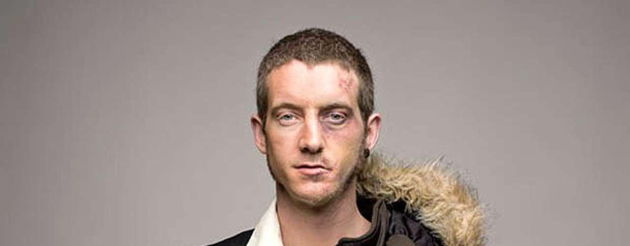 Roman Sakovich, fotógrado londinense realizó estos retratos para demostrar el cambio de la cara luego de consumir por un tiempo metanfetamina