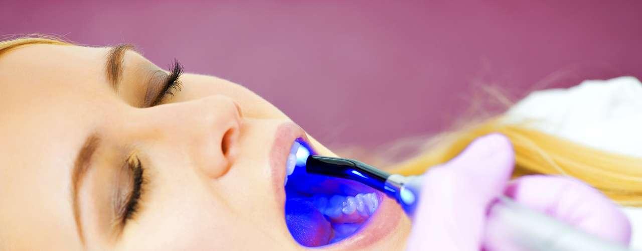 Demasiado uso de blanqueadores dentales: El uso exagerado de productos blanqueadores tanto caseros como comerciales puede producir efectos dañinos en las piezas dentales.