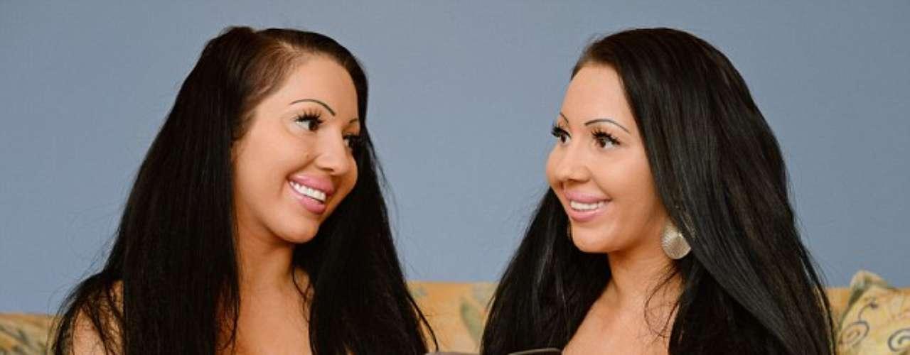 Las gemelas Lucy y Anna DeCinque, dos australianas que comparten todo, incluso el mismo novio.