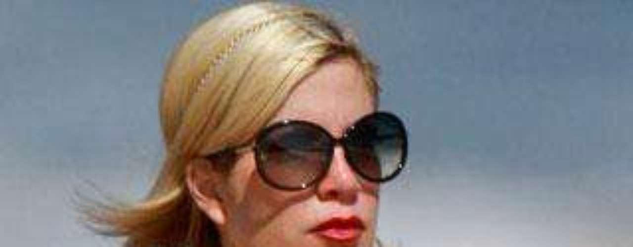 ¿Qué le sucede a los implantes de la actriz?