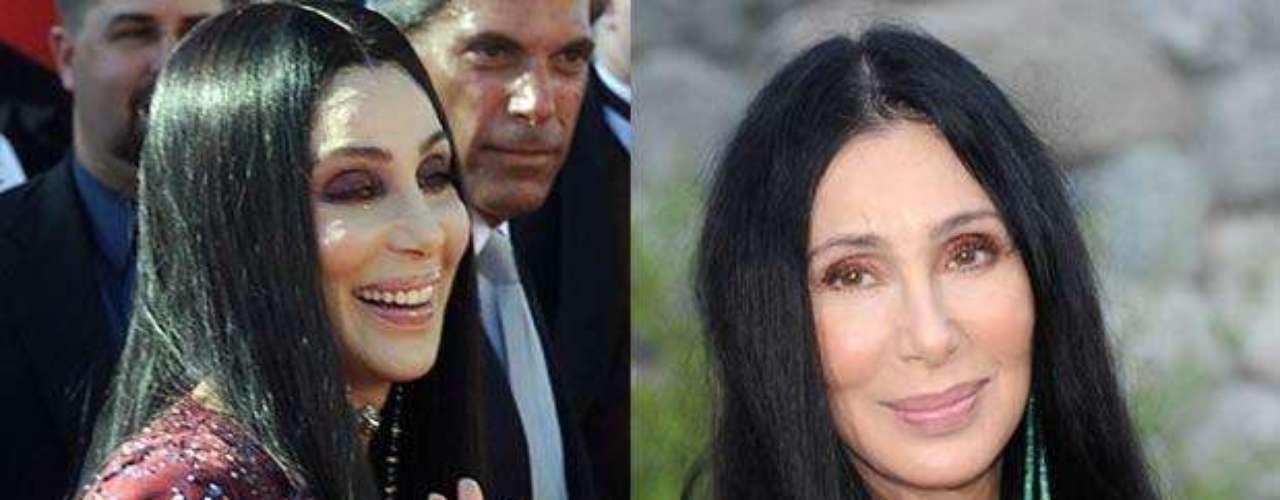 La guapa cantante y actriz Cher es una de las que ha vivido obsesionada con la juventud. Estiramiento de rostro, rinoplastia y aumento de pómulos se hallan entre el largo catálogo de cirugías a las que se ha sometido. En los últimos años se ha convertido en fanática del botox. ¿El resultado? Una piel lisa, pero inexpresiva.
