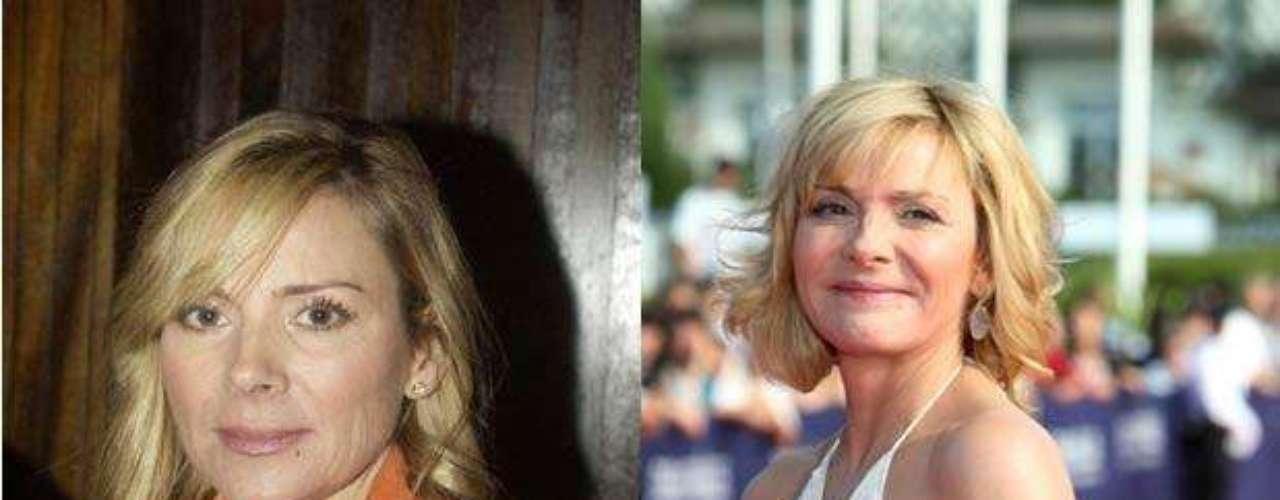 Kim Cattrall, mejor conocida como Samantha Jones por su papel en la famosa serie 'Sex and the city', también se fanatizó con el botox. ¡Qué fuerte!