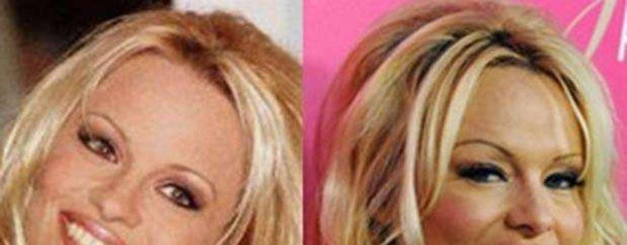Sensual y atractivo. Así era el rostro de Pamela Anderson, antes de que se convirtiera en una adicta de las inyecciones de este producto que promete 'juventud eterna'.