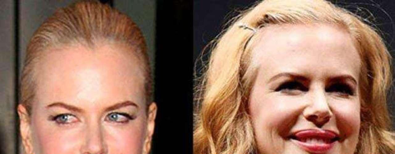 La hermosa Nicole Kidman también cayó en las garras del botox. Ella lo aplicó en la zona T de su rostro y en su nariz para levantarla un poco. Sus rasgos se volvieron un poco más toscos, pareciera que está enojada.