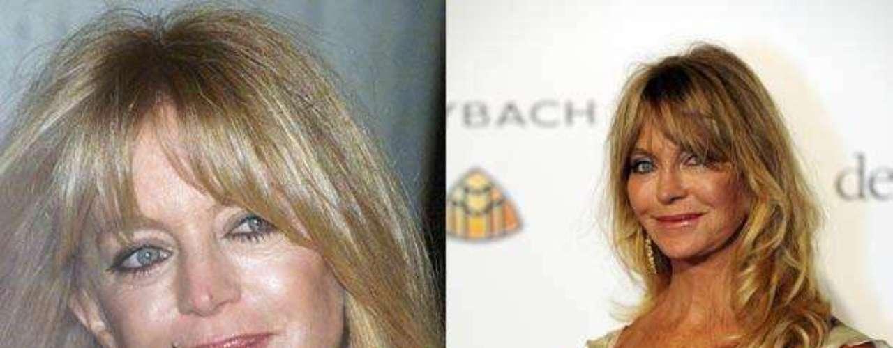 Goldie Hawn es sin duda quien más se ha obsesionado con la juventud eterna. Ha recurrido a un sinnúmero de inyecciones de botox. Éstas, últimamente, lejos de funcionarle la han perjudicado, pues la piel de su cara luce muy maltratada. Su rostro no es el mismo al de hace un par de años.