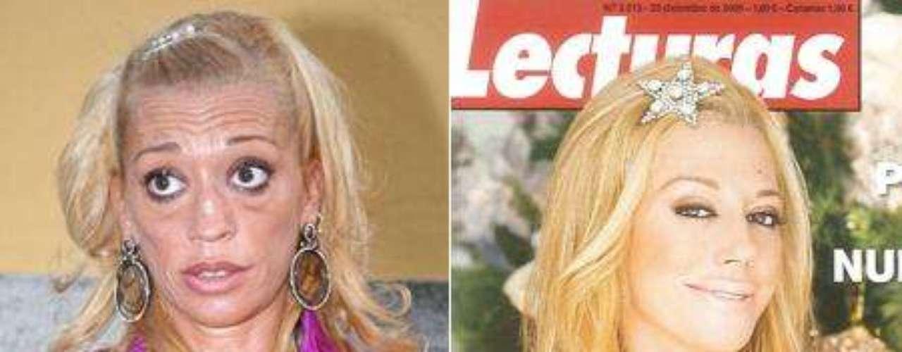 El antes y el después de la operación de cirugía a la que se sometió el pasado 30 de noviembre en la clínica Teknon de Barcelona.