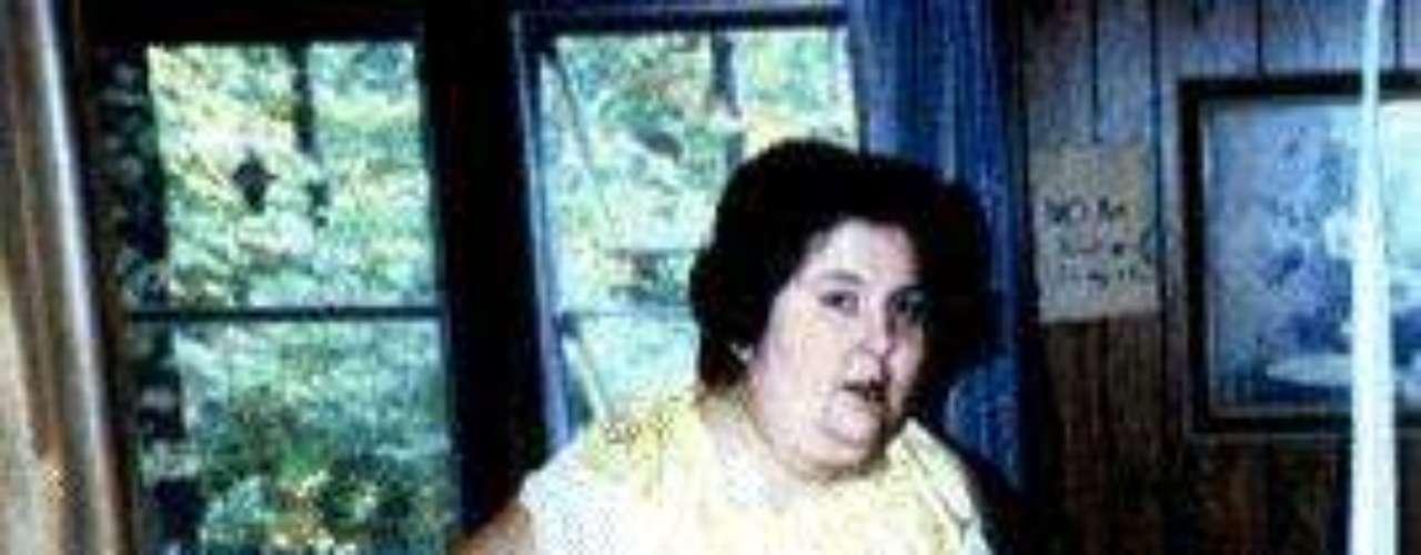 Rosalie Bradford:  Abandonada por su madre biológica y tras la muerte de su madre adoptiva, Rosalie se refugió en la comida y comenzó a ganar mucho peso. A los 15 años pesaba 309 libras (140 kilos) En Enero de 1987 alcanzó su peso máximo de 1,199 libras (544 kilos) y un año más tarde intentó suicidarse con pastillas para el dolor. Tras recibir ayuda, Rosalie perdió más de 900 libras. Murió a los 63 años en un hospital en Florida.