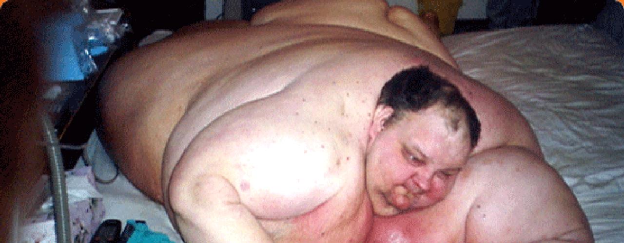 Patrick Deuel, un ex manager de restaurantes,  llegó a pesar 1,126 libras y no pudo salir de su cama en siete años.
