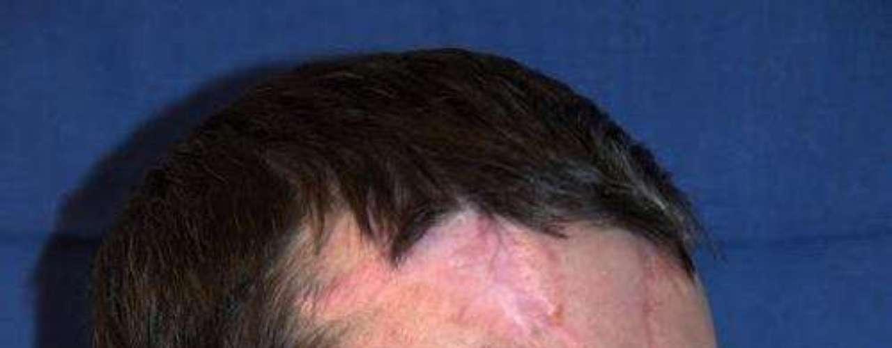 La operación, que duró 36 horas y se realizó entre el 19 y 20 de marzo, incluyó el trasplante de los dientes, la mandíbula, parte de la lengua y todo el tejido facial desde el cuero cabelludo hasta la base del cuello, según han informado los cirujanos del centro médico de la universidad.