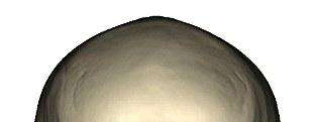 Un grupo de cirujanos de la Universidad de Maryland (EE.UU.) asegura haber realizado el trasplante de cara \