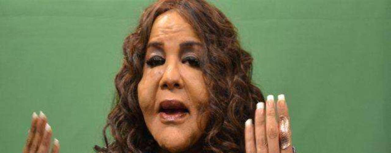 """Rajindra """"Rajee"""" Narinesingh, una de las víctimas del llamado Dr. Cemento en la Florida, hoy quiere ser presidenta. Como propuesta dice que será un \"""