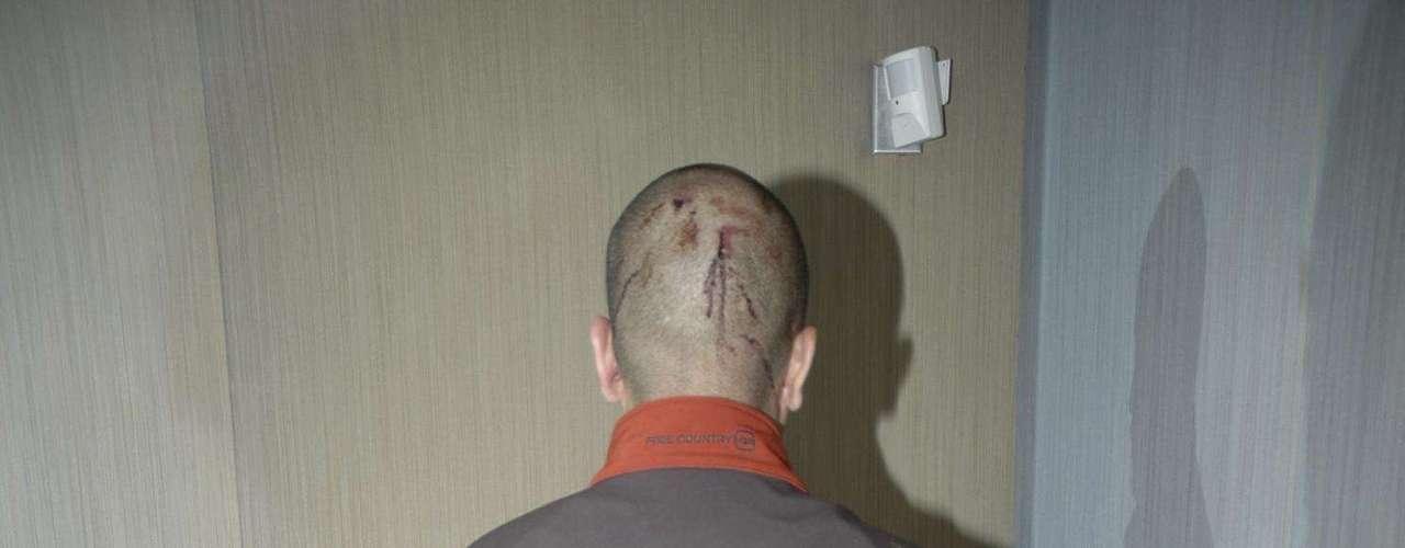 Según el informe médico de tres páginas al que tuvo acceso el canal ABC News, Zimmerman presentaba laceraciones en la nuca, los ojos morados y fractura de nariz, lo que podría reforzar su versión de que actuó en defensa propia.