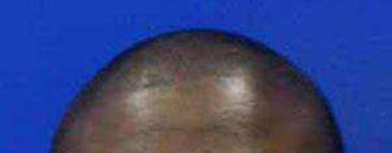 Además, este viernes surgieron otros detalles del supuesto acto caníbal de Alex Kinyua, como por ejemplo que utilizó un cuchillo para matar y cortar a su víctima Kujoe Bonsafo Agyei-Kodie, de 37 años. Esta persona estaba viviendo en la casa de Kinyua hacía unas 6 semanas.