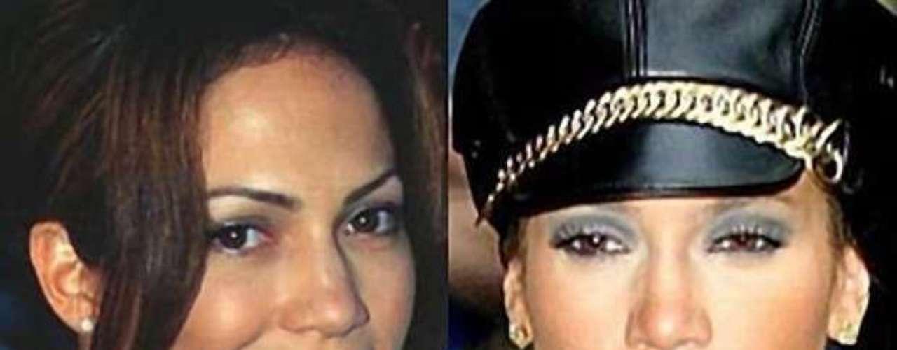 Entre los retoquitos a los que se ha sometido Jennifer López destacan el blanqueado de la piel y un tratamiento dermoabrasivo para eliminar cicatrices y marcas de su rostro.