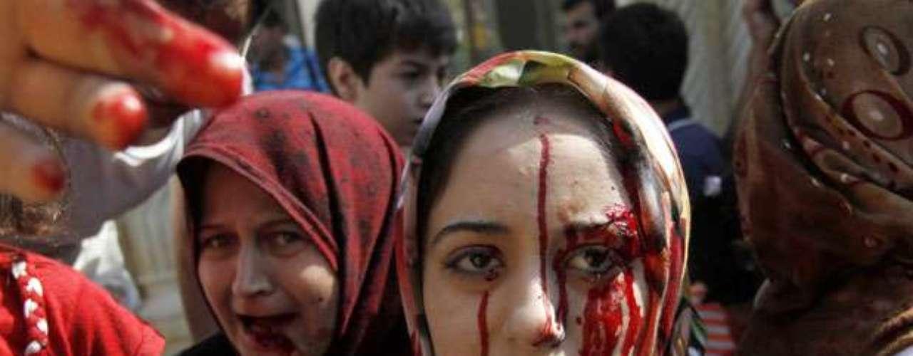 Mujeres heridas buscan auxilio tras un ataque aéreo en las afueras de Alepo, Siria.