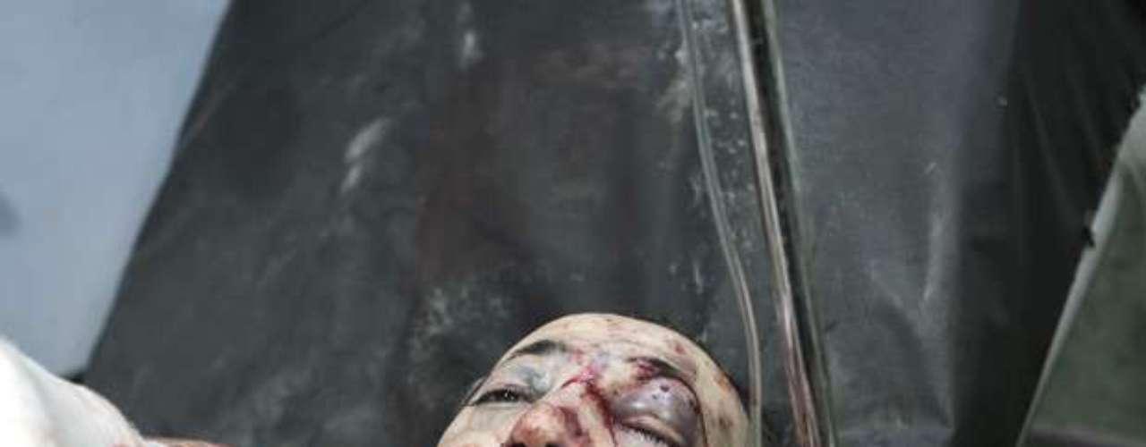 Los Comités de Coordinación Local señalaron que el bombardeo tuvo por objetivo la citada estación de servicio en la carretera que une las aldeas de Sharakrak y Ain Isa, lo que causó más de setenta heridos, que fueron trasladados al hospital de Raqa. Por su parte, el Observatorio sirio de Derechos Humanos precisó que el estallido de la gasolinera dejó 110 víctimas, entre muertos y heridos.