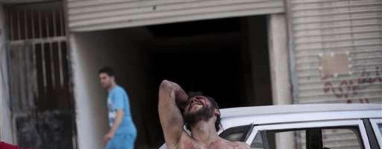 Un hombre, salpicado de sangre, muestra su dolor