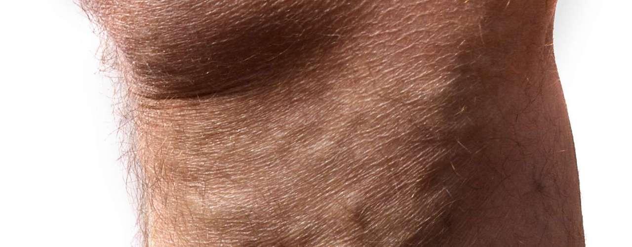 Las várices son venas dilatadas que se inflaman y se elevan a la superficie de la piel. Comúnmente son de color morado o azul oscuro y dan el aspecto de estar torcidas y abultadas. Regularmente se encuentran en la parte posterior de la pantorrilla o en la cara interna de la pierna.