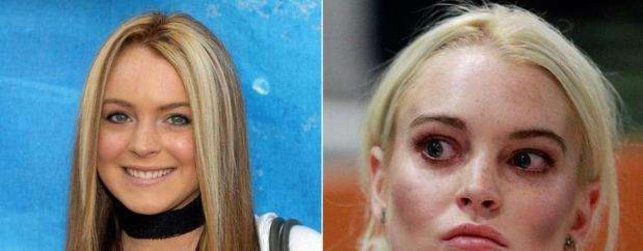 Con tan solo 25 años Lindsay Lohan pasó de ser una estrella adolescente a una artista problemática más conocida por sus escándalos que por su carrera. Alcoholismo, drogas y robo hacen parte de su expediente. A la vez que cambios drásticos de peso y cirugías estéticas.