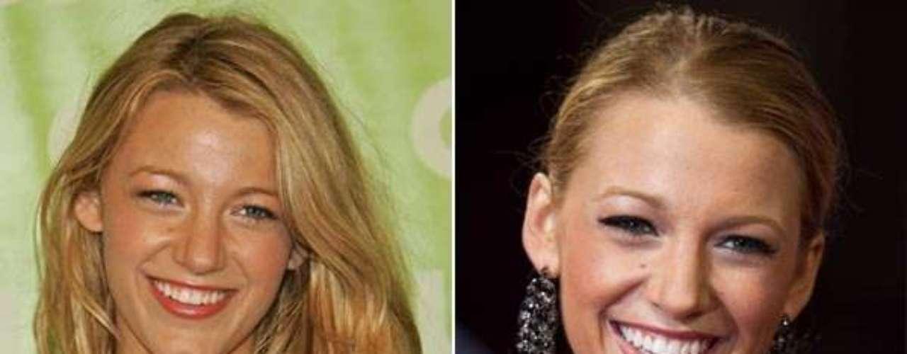 Blake Lively, la esposa de Ryan Reynolds niega las cirugías pero los rumores aseveran que se ha retocada boca, nariz y pómulos.