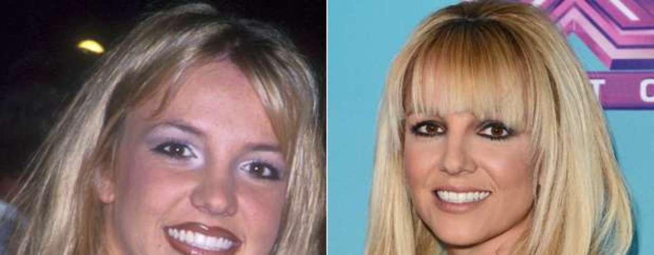 Aunque lo niegue, Britney Spears arregló su boca y nariz recién empezaba su éxito como cantante