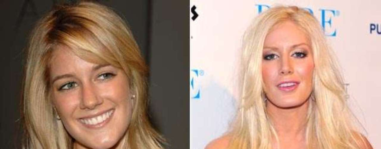Heidi Montag. Sí es la misma mujer, la de la izquierda y la de la derecha, está tan diferente que vale la pena aclararlo. La mismísima Heidi ha confesado su adicción a las cirugías y confesó haberse sometido a diez cirugías en un día de las cuales después se arrepintió.