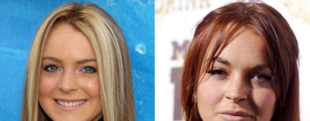 Lindsay Lohan con el paso del tiempo y sus escándalos se fue desfigurando la cara al igual que su carrera artística