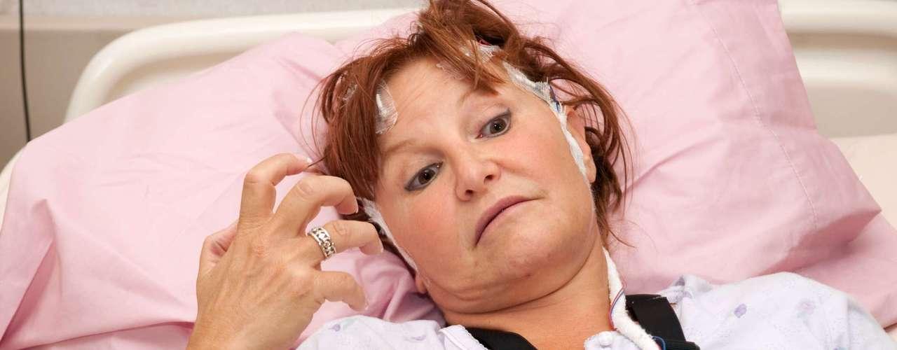 Las personas con convulsiones tienden a padecer más problemas físicos, tales como fracturas y hematomas, y mayores tasas de otras enfermedades o problemas psicosociales y de trastornos tales como la ansiedad o la depresión.