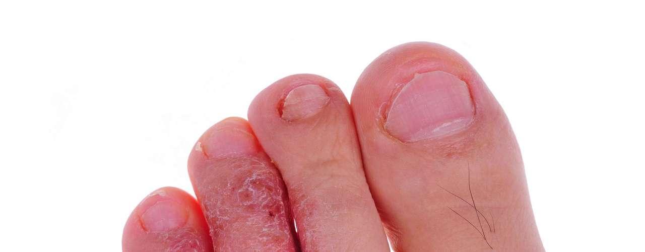 Pies: La infección conocida como pie de atleta es causado por hongos que provocan la tiña, una infección que puede aparecer en otras áreas como el cuero cabelludo y la ingle. El tratamiento consiste en el uso local de antimicóticos. Una simple descamación no se caracteriza como micosis. El tratamiento para los dedos de los pies por tiña es prolongado, la aplicación de antimicóticos puede tomar un mes o más. Los pies deben mantenerse secos, inclinarlos bien después del baño. Si esta región le suda mucho, se recomienda el uso de calcetines de algodón y dejar los pies al aire libre siempre que sea posible, el calzado también es importante para que se ventilen mejor.